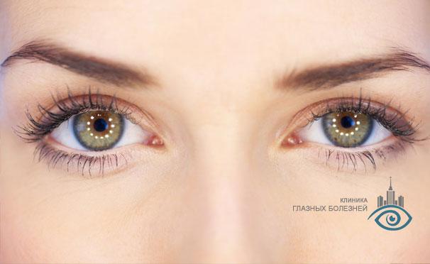 Лазерная коррекция зрения по технологии FemtoLasik в «Клинике глазных болезней». Скидка до 51%