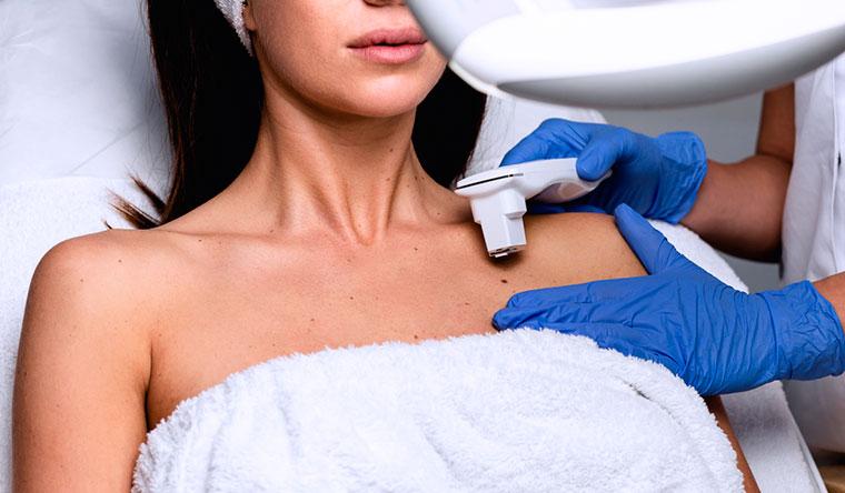 Электрокоагуляция от 3 до 12 папиллом, невусов, кондилом и бородавок в косметологической студии «Ника». Скидка до 88%