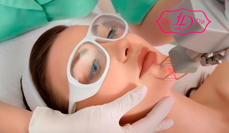 Скидка до 74% на лазерную эпиляцию зон на выбор в салонах лазерной косметологии и эпиляции Louis D'or