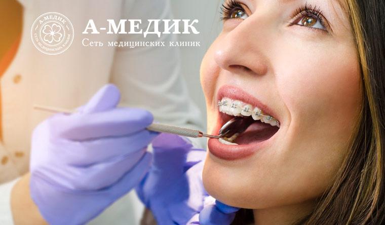 Установка металлических или керамических брекетов на 1 или 2 челюсти в сети многопрофильных клиник «А-медик». Скидка до 81%