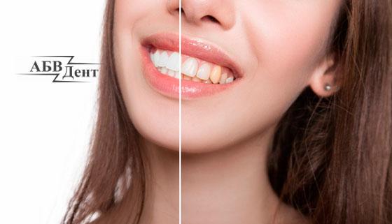 Скидка 50% на профессиональную гигиену полости рта в стоматологической клинике «АБВДент»