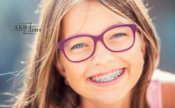 Установка металлической или сапфировой брекет-системы в стоматологической клинике «АБВДент». Скидка до 85%