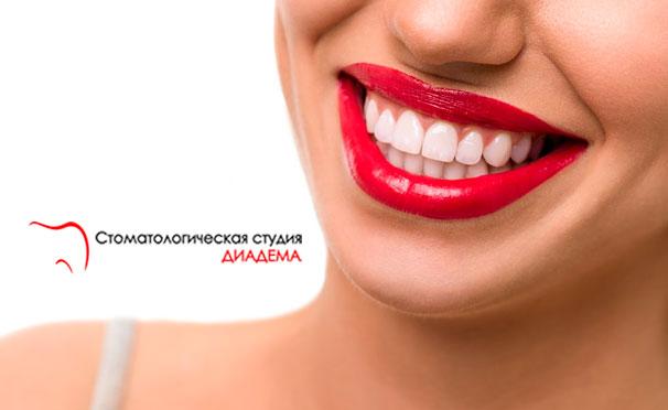 Комплексная гигиена полости рта и лечение кариеса в клинике «Диадема» со скидкой до 71%