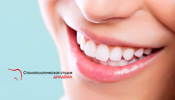 Скидка до 71% на ультразвуковую чистку зубов и лечение кариеса в клинике «Диадема»