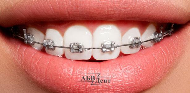 Скидка до 85% на установку металлической или сапфировой брекет-системы на 1 или 2 челюсти в стоматологической клинике «АБВДент»