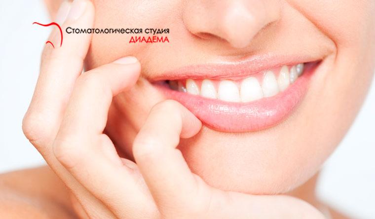 Ультразвуковая чистка зубов с полировкой и фторированием + лечение кариеса в клинике «Диадема». Скидка до 71%