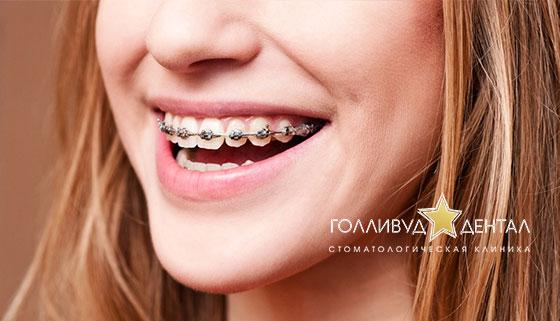 Сапфировые, металлические или комбинированные брекеты в стоматологической клинике «Голливуд Дентал». Скидка до 62%