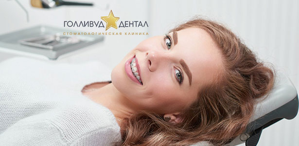 Скидка до 62% на установку сапфировой, металлической или комбинированной брекет-системы в стоматологической клинике «Голливуд Дентал»