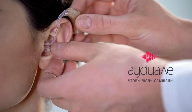 Замена старого слухового аппарата на новый в центре здорового слуха «Аудиале» со скидкой 20%
